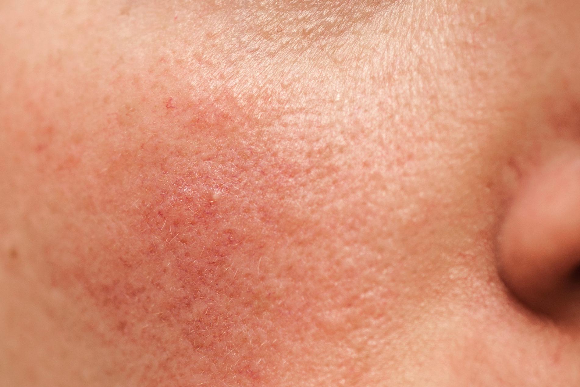 rosacée sur le visage